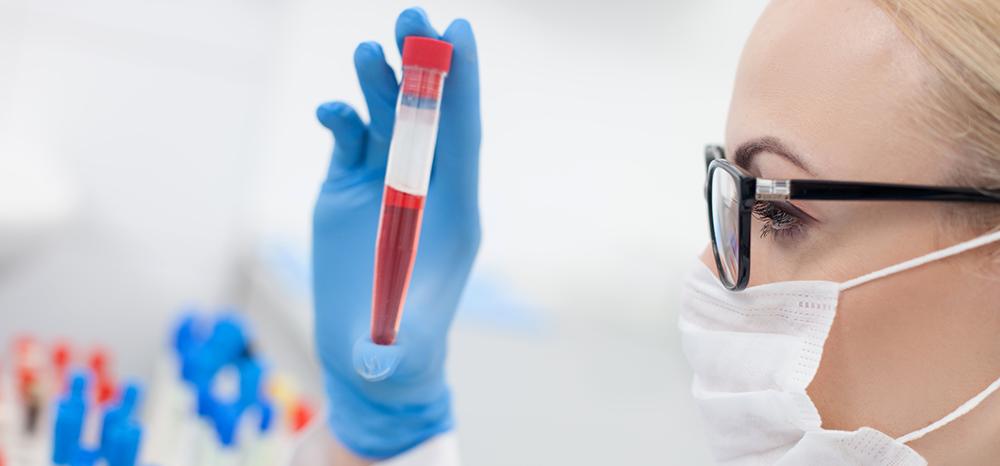 Conheça o novo exame de sangue para câncer de próstata, o PHI