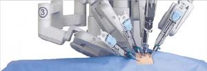 História da cirurgia robótica