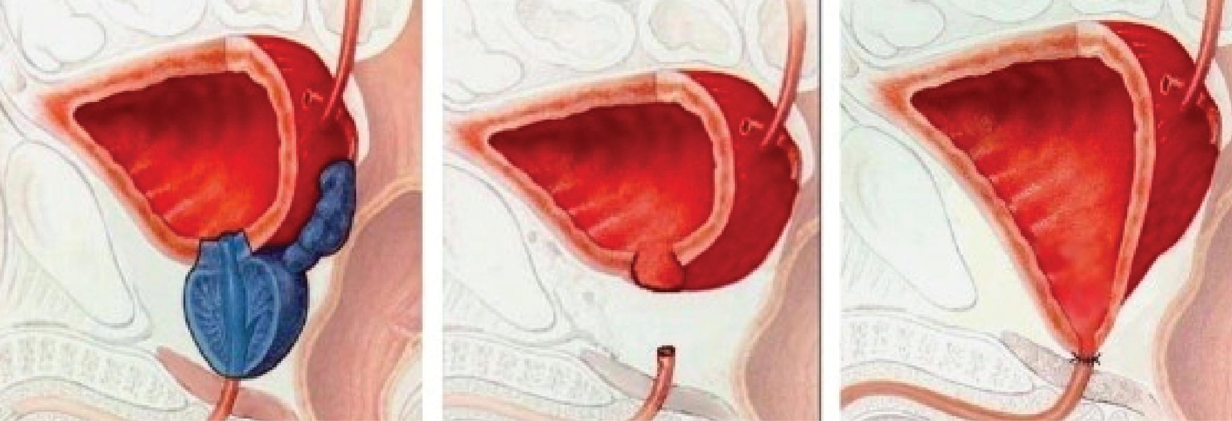 centros de excelencia para la próstata