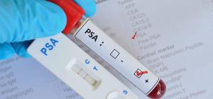 Teste único de PSA não reduz mortes por câncer, diz estudo britânico