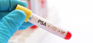 Qual a precisão do teste de PSA?