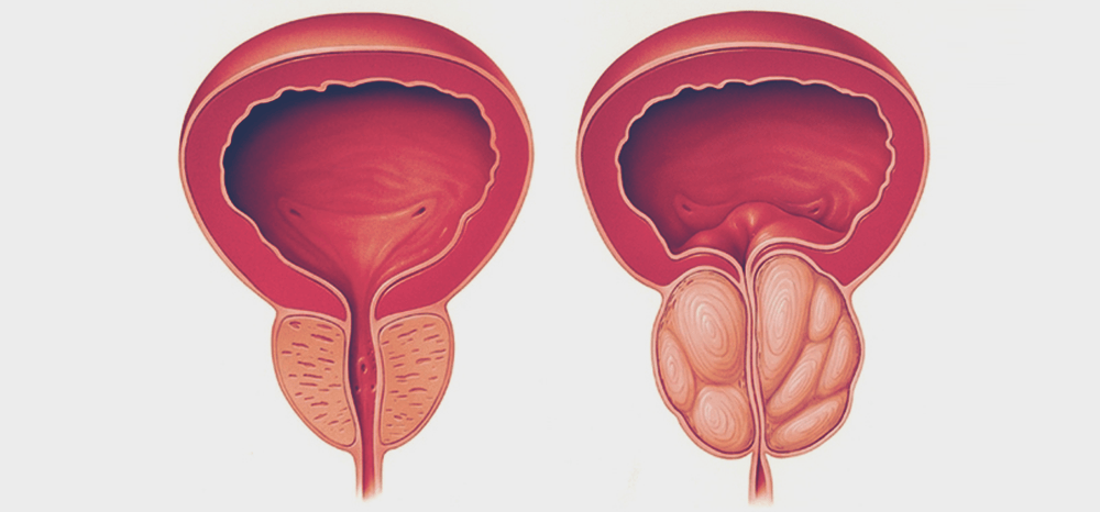 Hiperplasia benigna da próstata: novo método brasileiro de tratamento recebe destaque mundial